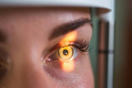 eye scan - Ayyy-EYE! Google code 'predicts heart disease' by eyeballing retinas